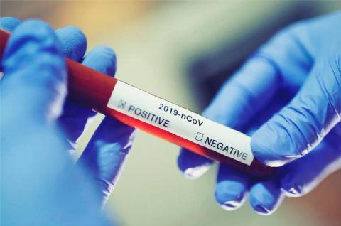 Confresa chega aos mil casos confirmados do novo coronavírus